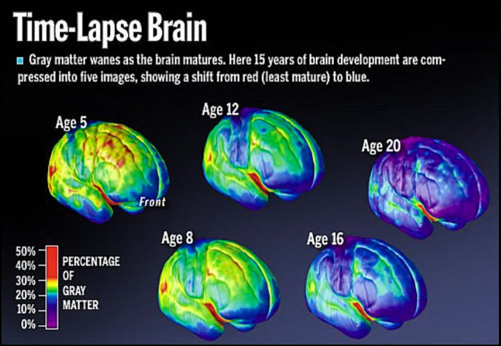 The Brains of Pot Smokers
