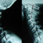 If this is how you text, you're seriously messing up your spine