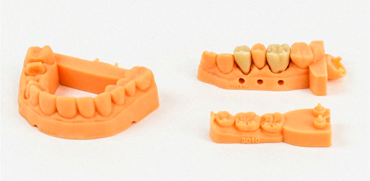 3_3D printed teeth