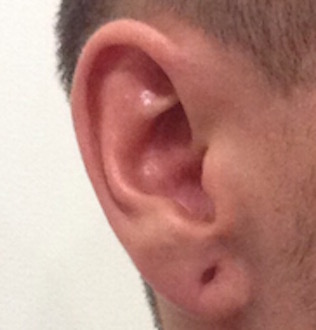 My right earlobe a day before the surgery. My once 14mm holes had naturally healed to 8mm.