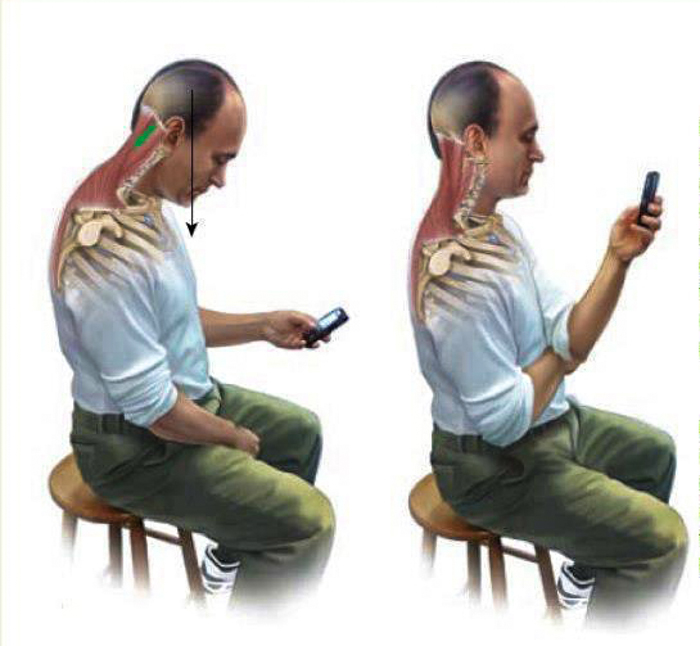 2_Cell phone_messing up your spine
