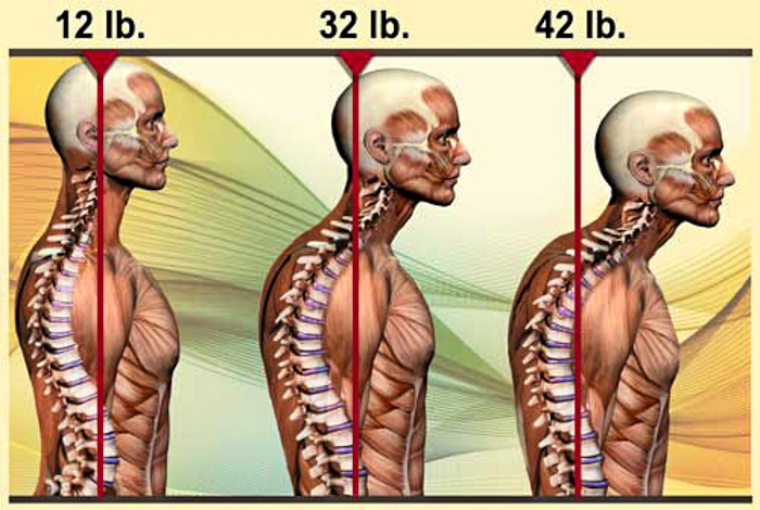 3_Cell phone_messing up your spine