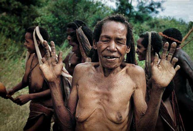 4_The Dani Tribe Amputate