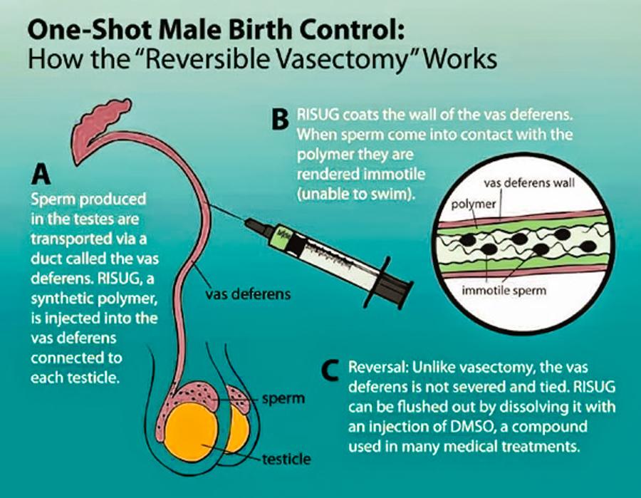 3_birth control for men