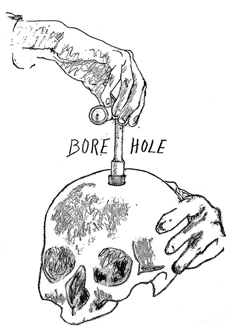 3_author drilled a hole in his head
