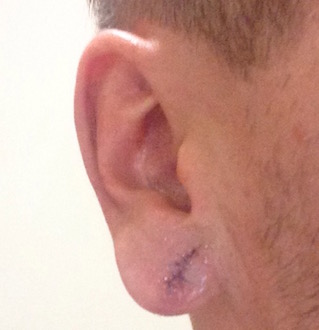 Earlobe one, day after the surgery, with obvious swelling.
